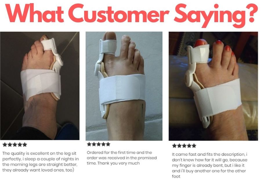 Arm - Best Orthopedic Bunion Corrector - Adjustable And Non-Surgical Natural Treatment & Relief