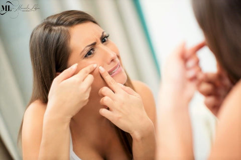 A woman touching her face | Acne treatment