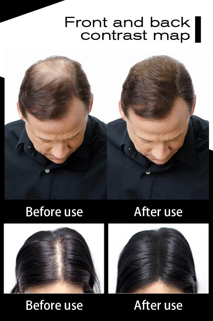 Hair Building Fibers Keratin- Thicker Anti Hair Loss - Niche Savings