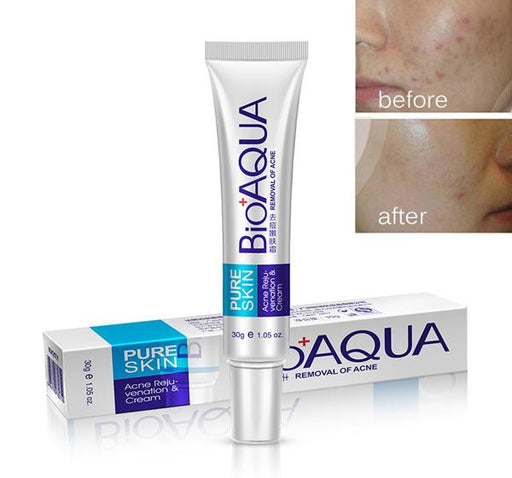 BioAQUA Face Acne Scars Treatment Cream