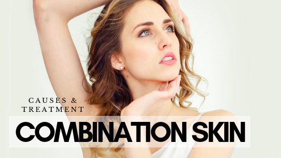 Combination Skin: Causes And Treatment