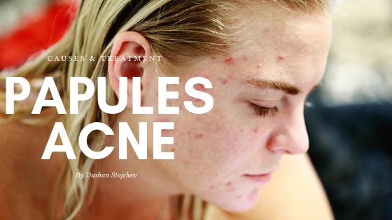 Papules Acne: Causes and Treatment