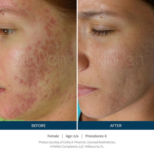 Microneedling (SkinPen)-Christopher Jones MD PC