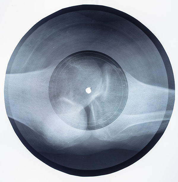 Massive Attack: X-Ray Record (Original Artwork)