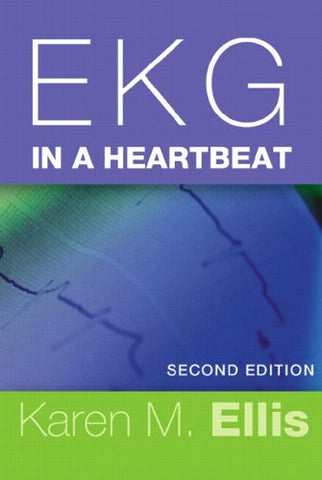 Ekg In A Heartbeat (2Nd Edition)