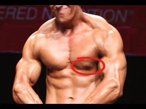 What Causes Gynecomastia and How to Get Rid of It