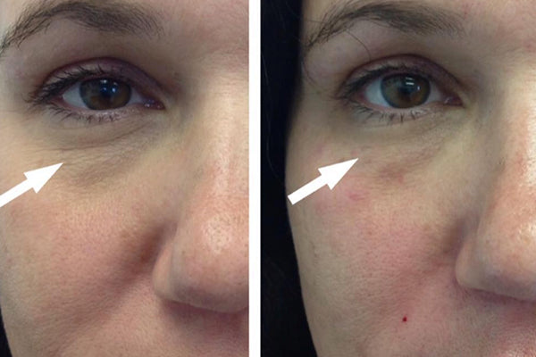 An image of the before and after of eye rejuvenation treatment.