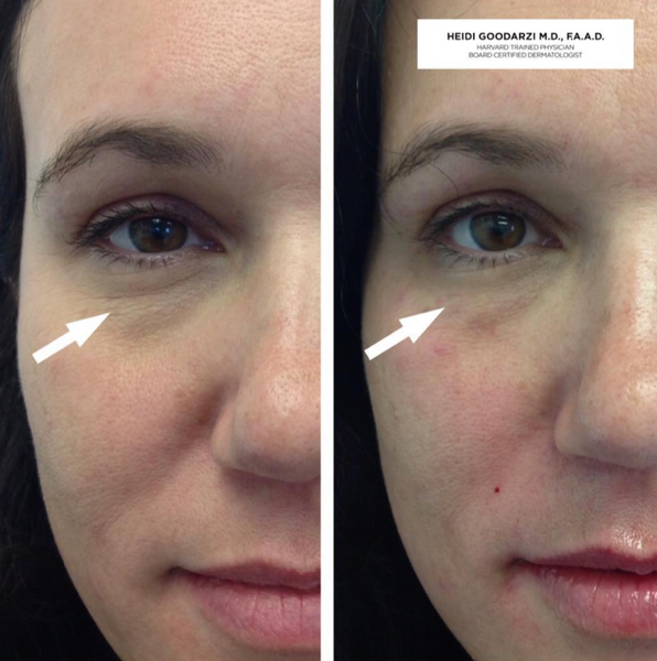 A before and after image of an eye rejuvenation procedure by Dr. Heidi