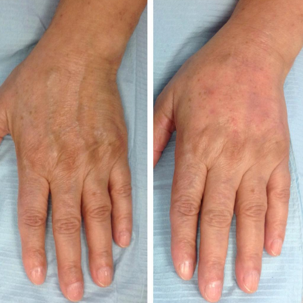 An image of a before and after of a Hand Rejuvenation treatment by Dr Heidi
