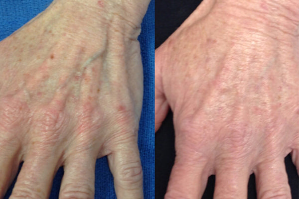 An image of the before and after of a hand rejuvenation procedure.