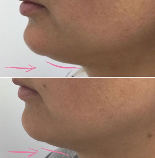 An image of a before and after of Kybella Treatment by Dr. Heidi.