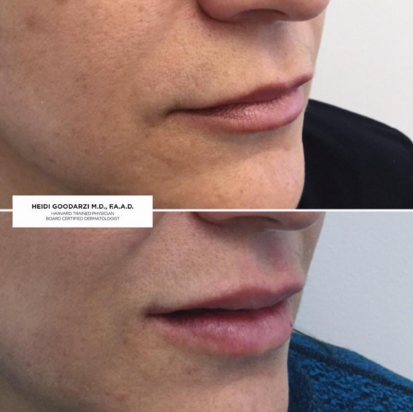 An image of a before and after of a patient of Dr Heidi's that had a Lip Filler Procedure.