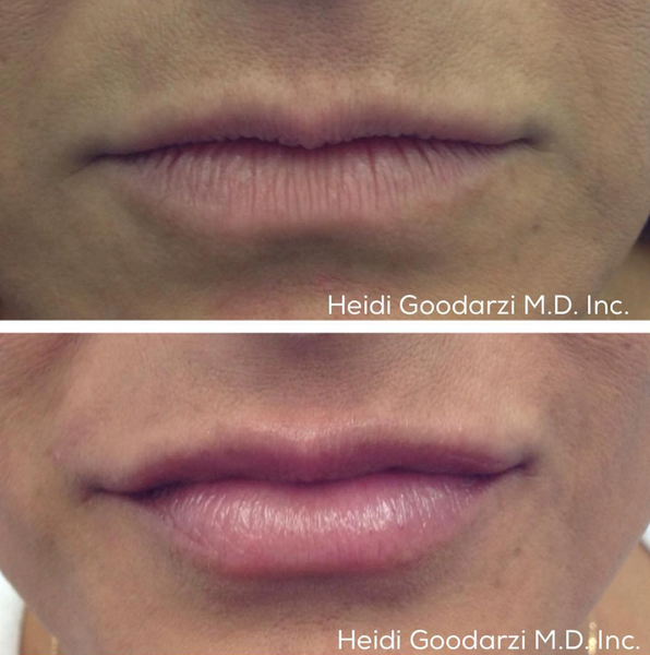 An image of a before and after of a patient of Dr Heidi's that had a Soft Lip Filler Procedure.