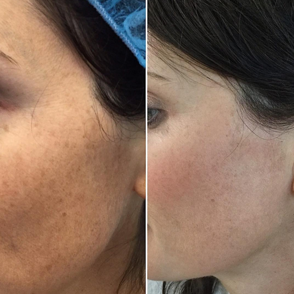 A before and after of IPL treatment fo reduction of Brown Spots on the Face