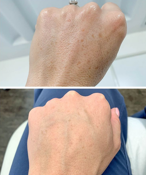 A before and after images of IPL treatment for Reduction of Brown Spots on the hands