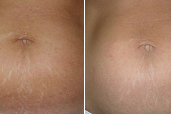 An image of the before and after of stretch mark laser treatments