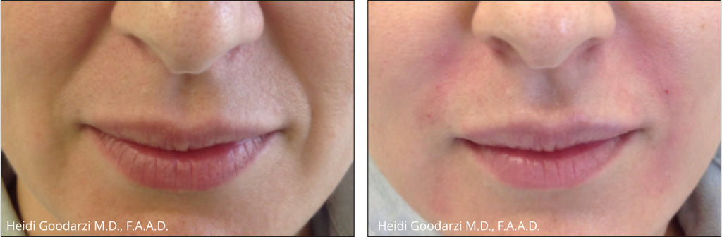 A image of a before and after laugh line filler procedure