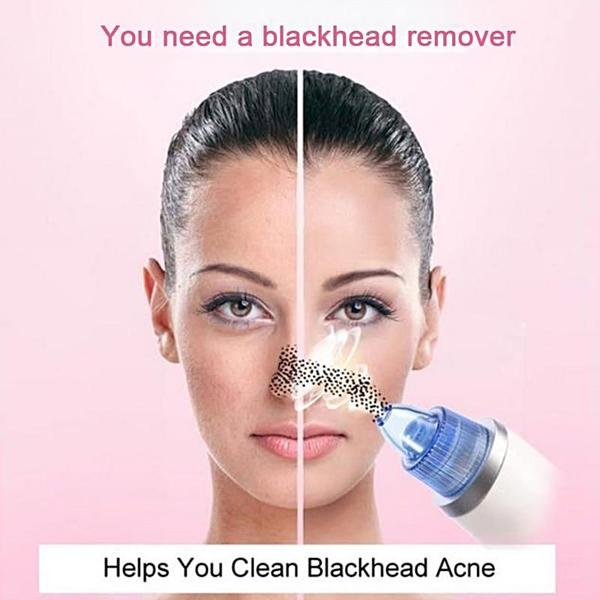 Blackhead Remover - Before and After Use