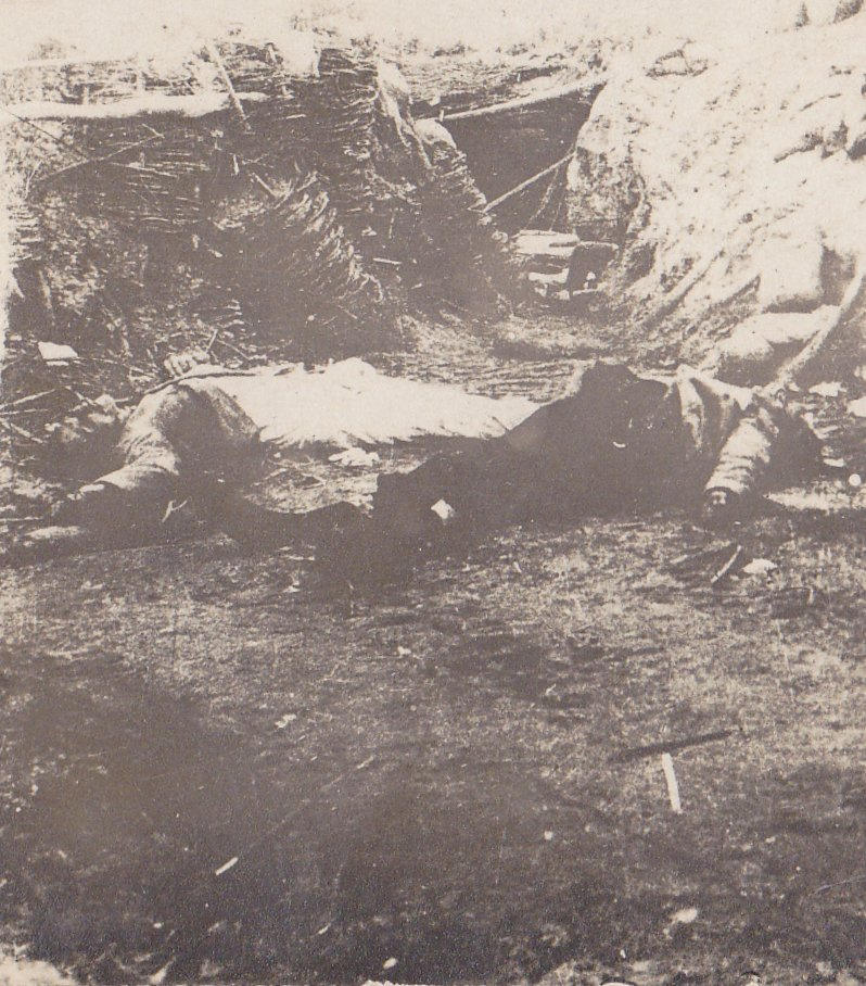 Soissons Front Casualties- 1910s Antique Photograph- WWI Battlefield- Trench Warfare- Eyewitness History- RPPC- July 1918