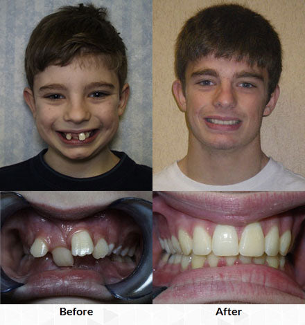 braces bone moving traction