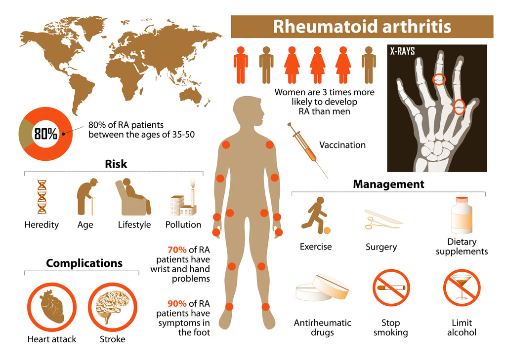 Rheumatoid Arthritis Treatment Chart Risks Complications Management