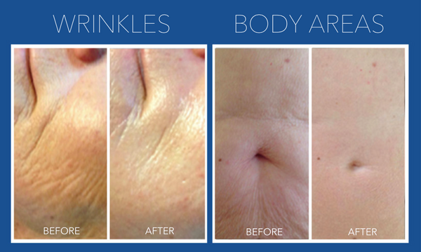 Micro-needling Skin Rejuvenation Course of 3+2 FREE (Save €401)