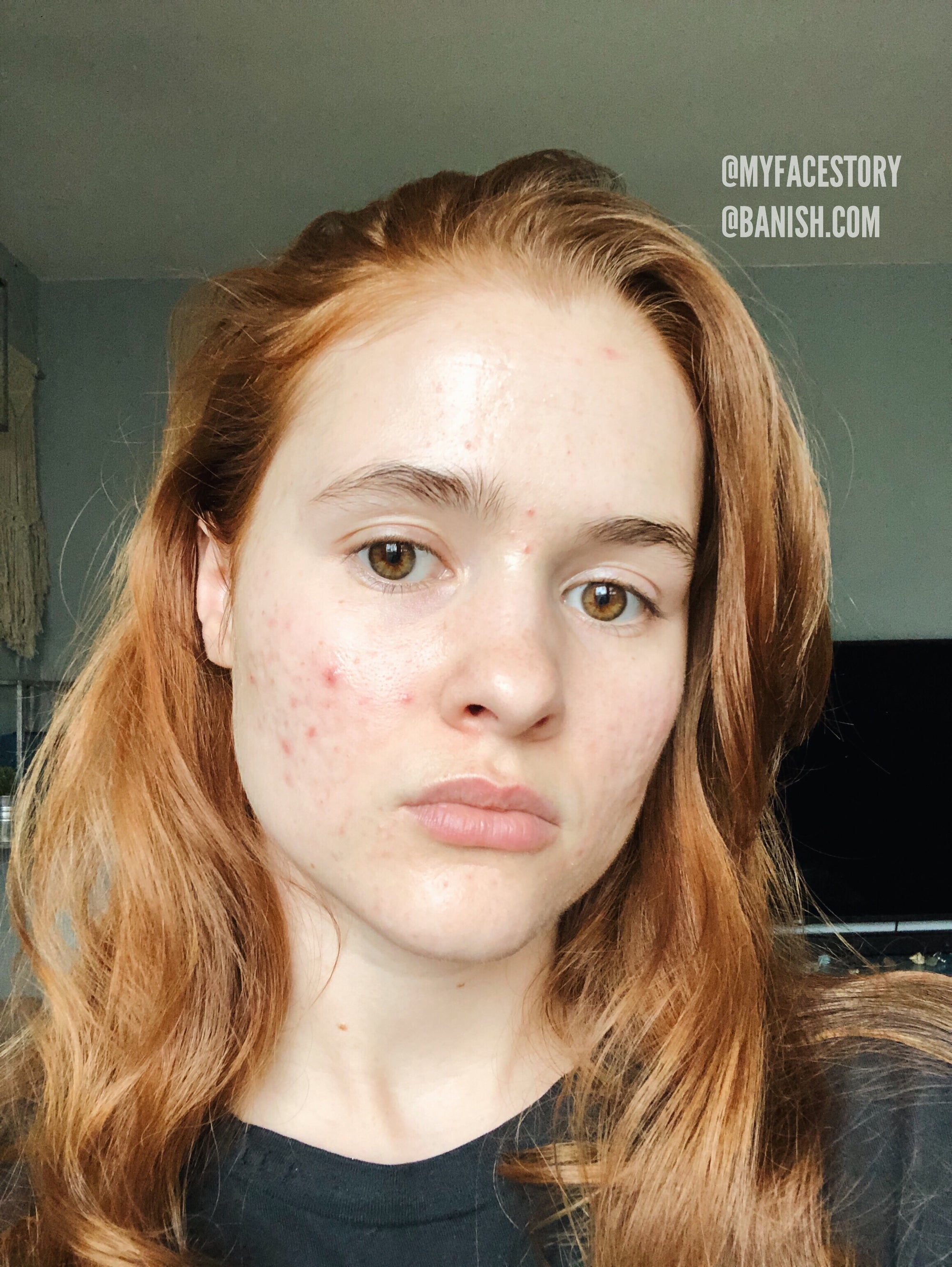 How to Tell If It's Acne Or Rosacea