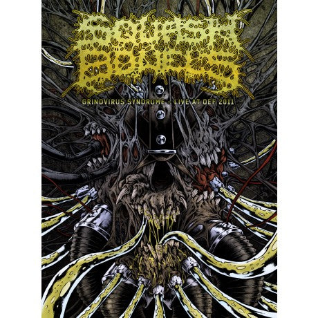 Squash Bowels- Grindvirus Syndrome, Live At OEF 2011 DVD on Deformeathing Prod.