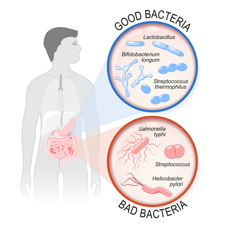 Gut feelings: what happens when your microflora is out of balance?