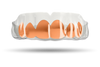 Chrome Rose Gold Grill (Clear)