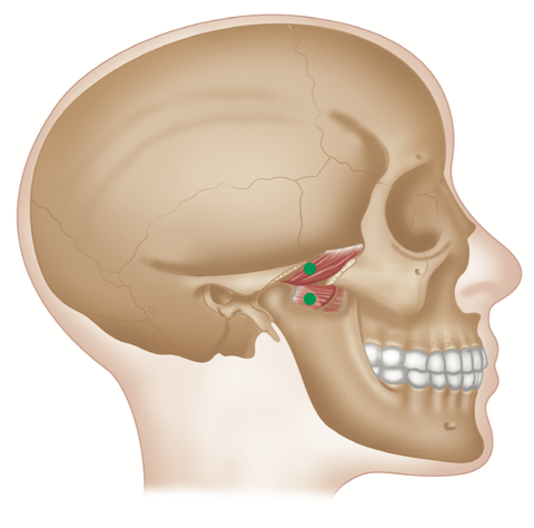 Lateral Pterygoid Trigger Point Release