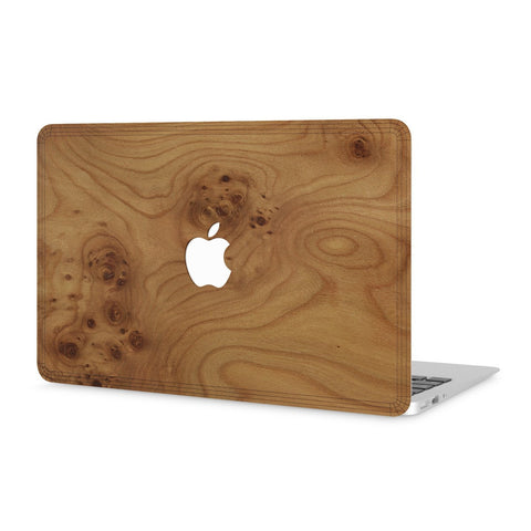 "MacBook Air 11"" — #WoodBack Skin - Cover-Up - 1"