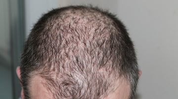 Male Hair Loss: Everything You Need to Know