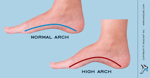 Orthotic Therapy for the Pes Cavus Foot
