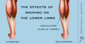 The Effects of Smoking on the Lower Limbs
