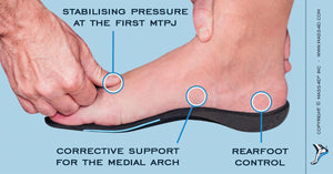 Preventing Postsurgical Hallux Valgus Recurrences with Plantar Pressure Assessment