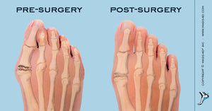 Postoperative Rehabilitative Care For Hallux Valgus