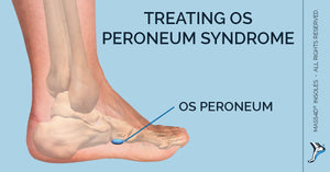 Os Peroneum Syndrome