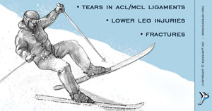 Skiing Injuries of Lower Body