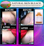 How to Lighten Dark Inner Thighs Fast African American Skin Lightener Bleaching For African American Skin Before and After pics DevotedThings product