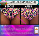 4 Skin Bleaching For Private Areas Zone For Dark Bikini Line Privates Parts Before and After pics DevotedThings product