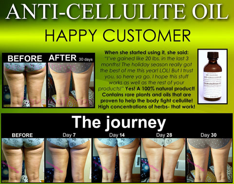 Cellulite Oil - All Natural Anti Cellulite Oil Treatment That Works For Thighs With Caffeine And Essential Oils