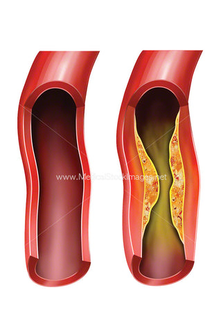 Arteriosclerotic Vascular Disease or ASVD