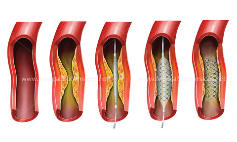 Balloon Angioplasty for Arteriosclerotic Vascular Disease or ASVD