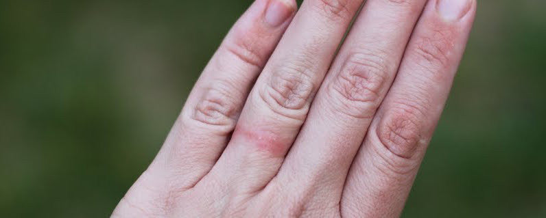 Are You Allergic To Your Wedding Ring?