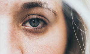 Understanding the Difference Between Dark Circles, Puffy Eyes and Eye Bags