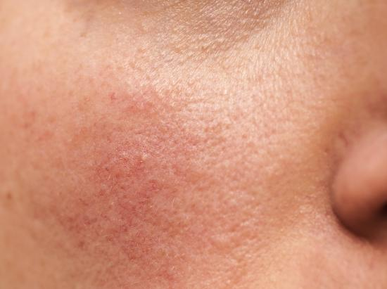 Eczema, Psoriasis and Rosacea, And The Common Link That Can Bring Relief