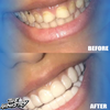 Industry Custom Veneers