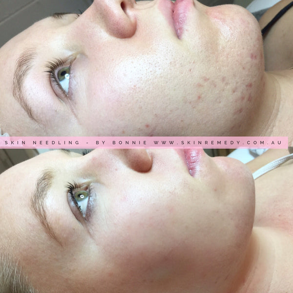 12 WEEK DERMAPEN MIRACLE GLOW & TONE: 3 x Skin Needling DERMAPEN 12 WEEK PROGRAM: 3x Dermapen MicroNeedling, 3x Stem Cell Peptide Infusions, 3x OMNILUX LED Light Therapy (SAVE $800 Usually $1499)