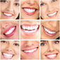 Clubbing Love ™️Hollywood Smile Teeth Whitening Kit